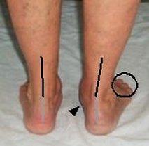Tibialis Posterior Rehabilitation: Introduction